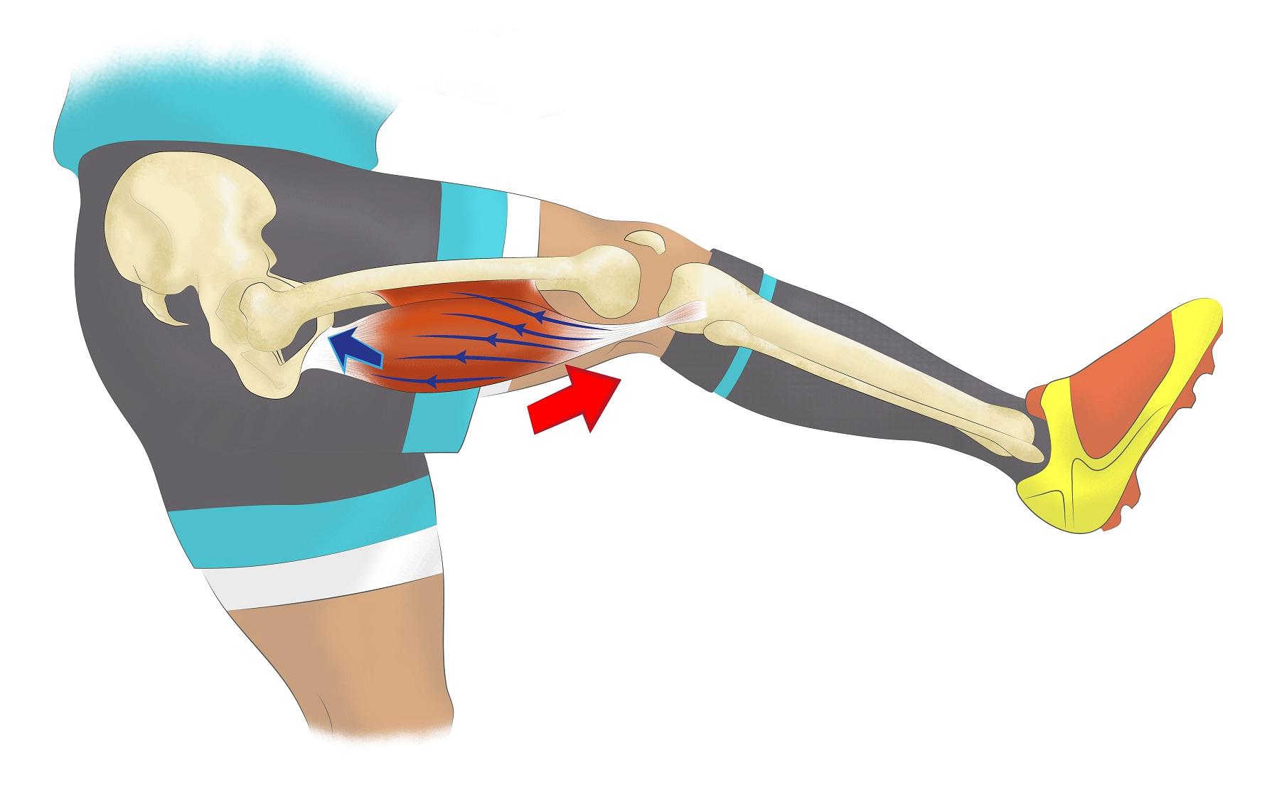 Contracture musculaire : qu'est-ce que c'est ?